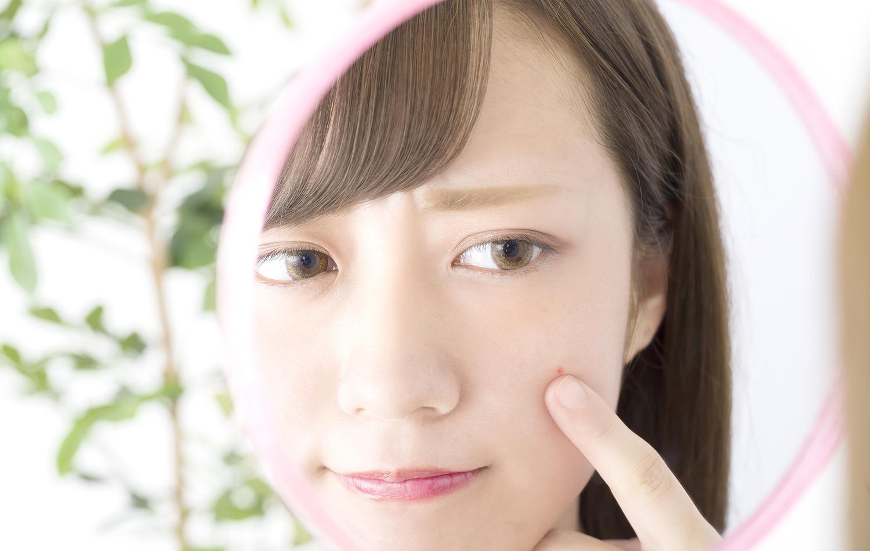 ニキビケアにおすすめの化粧水5選【編集部厳選!!】