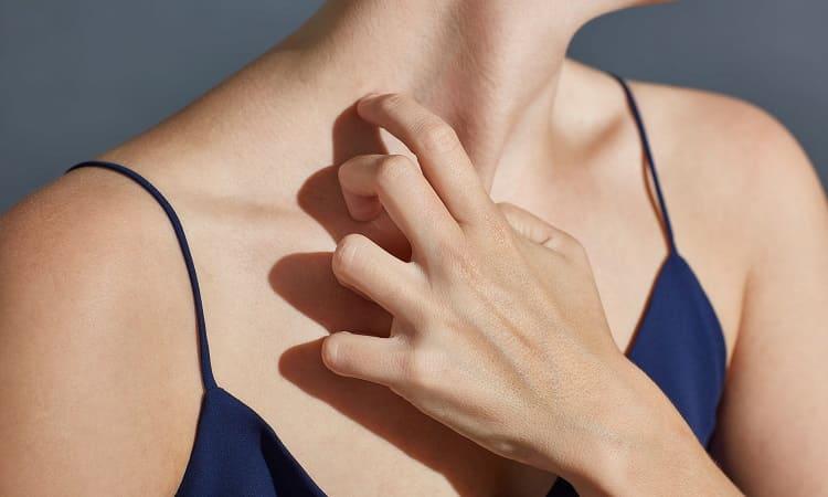 敏感性肌膚示意圖